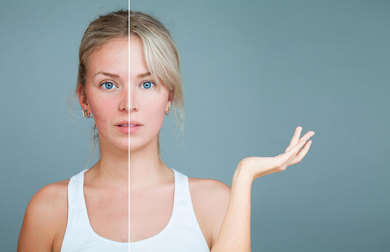Acne Prevention: Lifestyle Choices That Contribute to Breakouts