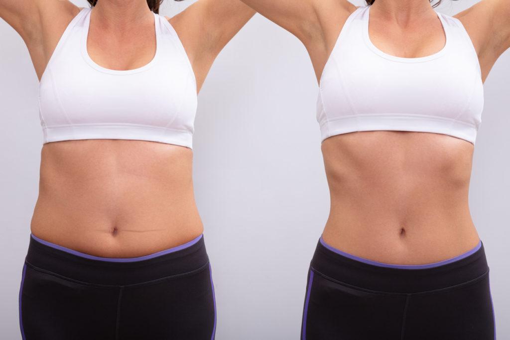 Fat Reduction, Skin Tightening & Toning